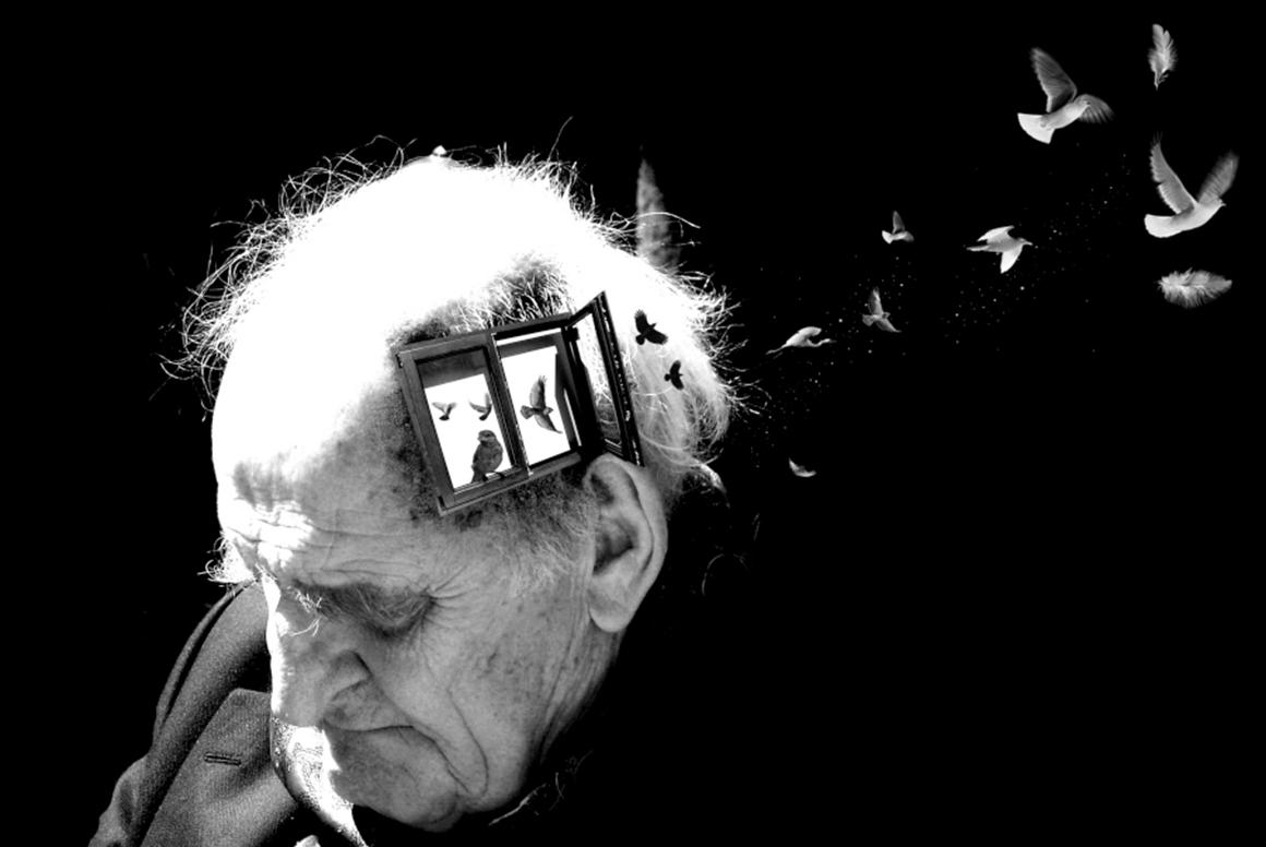 As 4 Causas Mais Frequentes de Demência